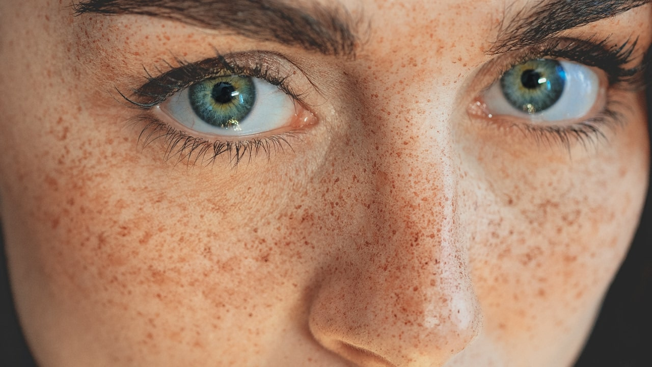 Freckless
